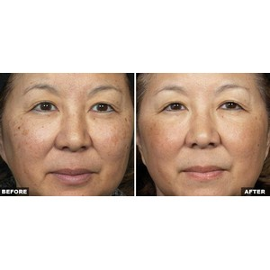 skinresurfacing