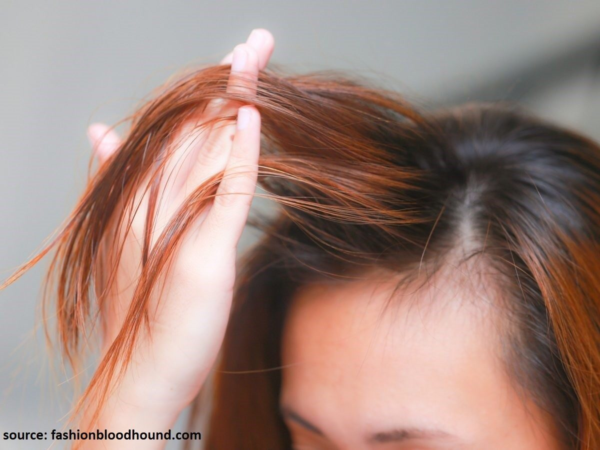 9 Tips to Naturally Regrow Your Hair