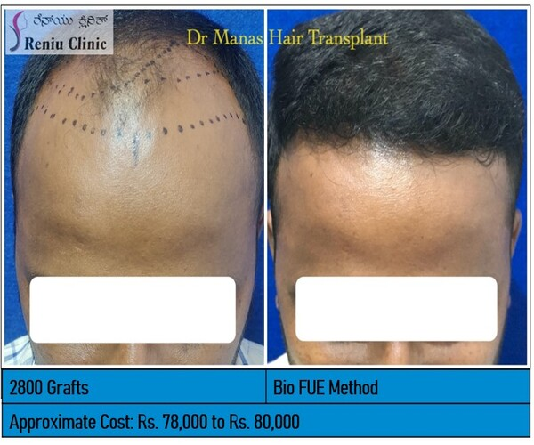 BEFORE AFTER IMAGES OF OUR CLIENTS:
