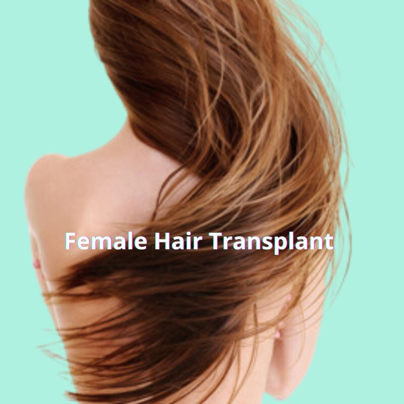 female-hair-transplant